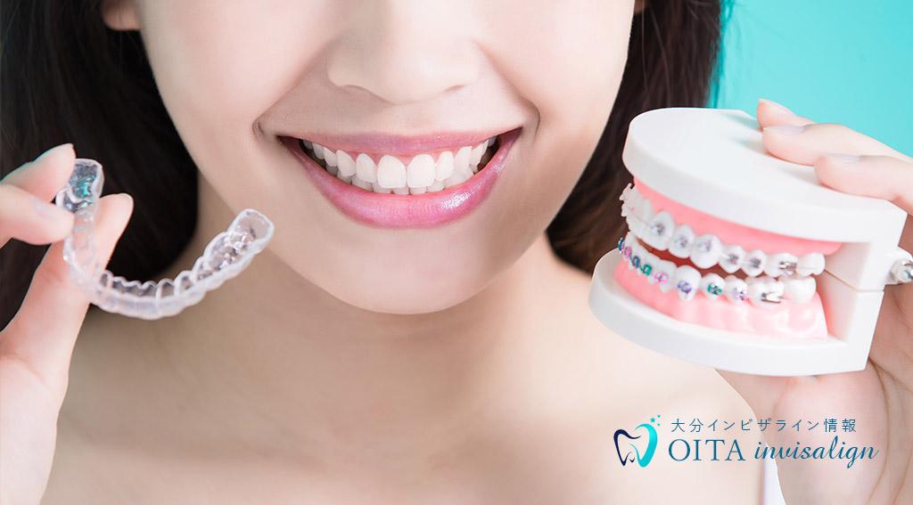 インビザラインとほかの矯正歯科の違い