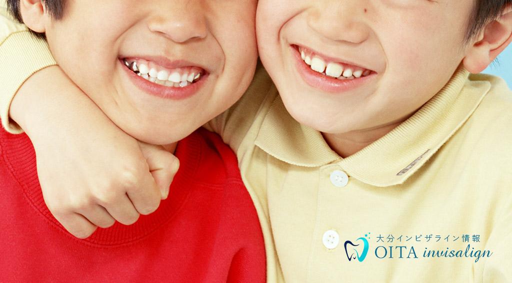 歯のすきまが気になる(すきっ歯)空隙歯列