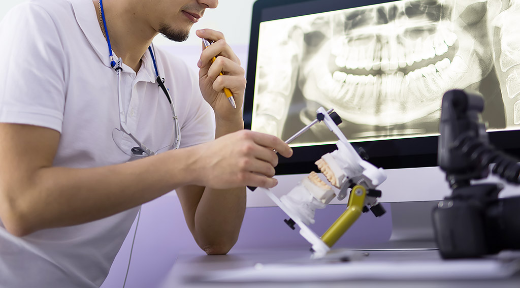 抜歯を伴うインビザライン治療
