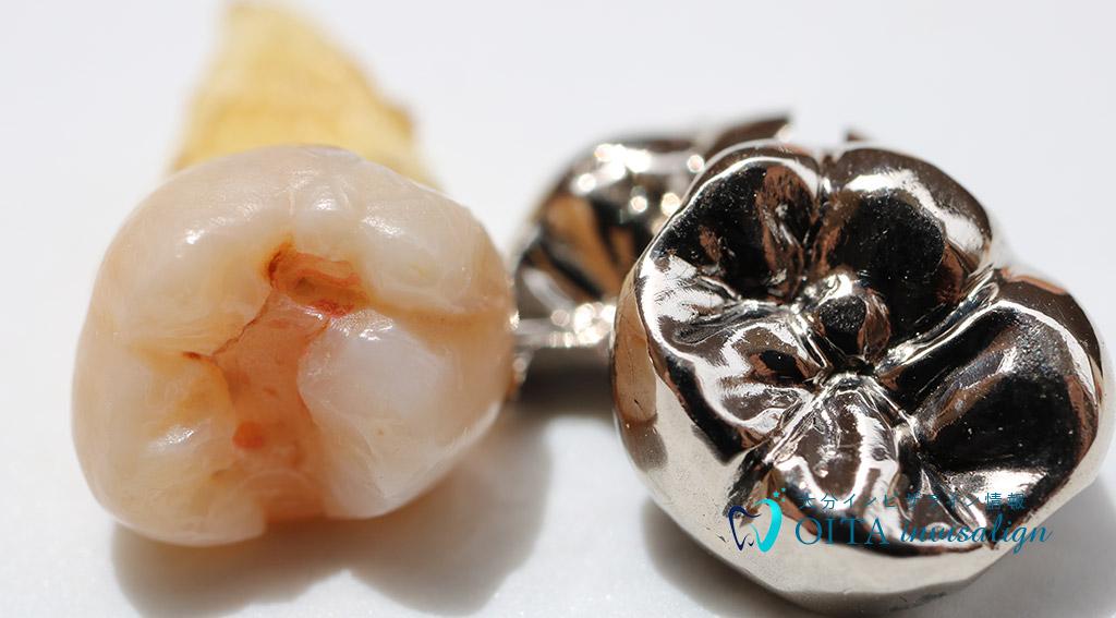 昔の歯科治療