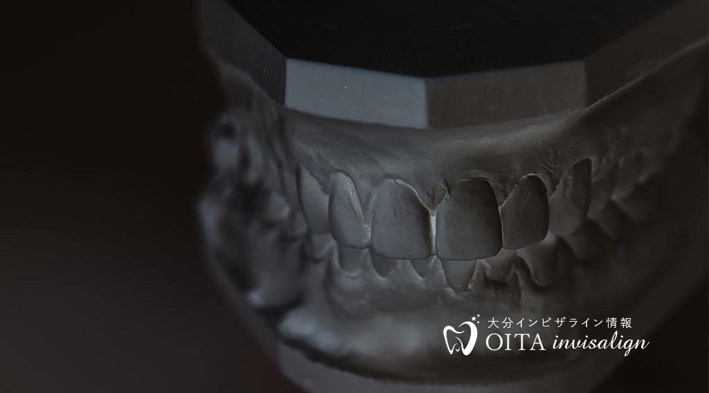 虫歯を放置すると死の原因になる?