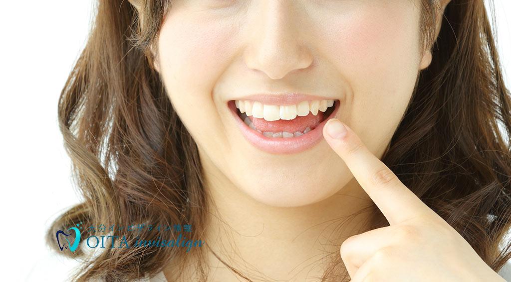 八重歯は不正咬合の一種