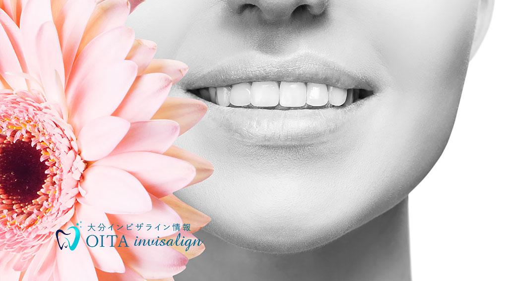 矯正歯科の費用