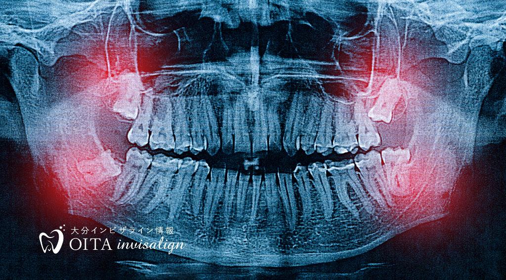 歯がないと認知症のリスクが高まる?