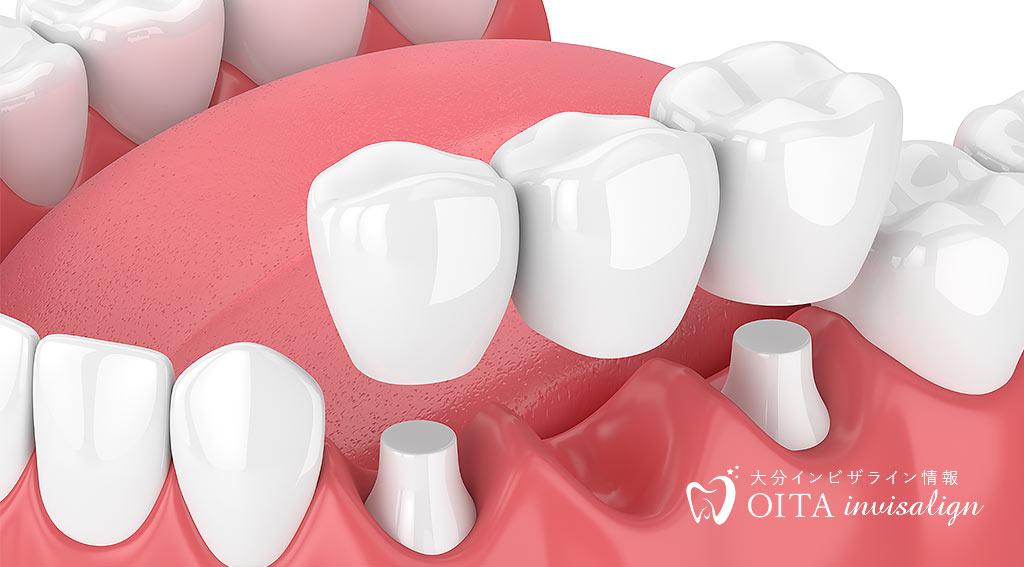 補綴歯科(ほてつしか)とは
